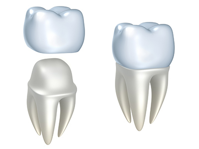 Dental Crowns at New Day Dental Care