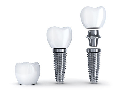 Teeth Implants by New Day Dental Care