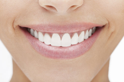 Veneers at New Day Dental Care